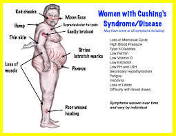 What Is Cushing's Syndrome?