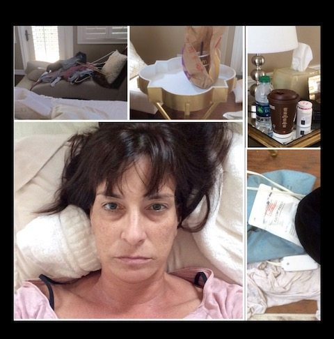 My day with Relapsing Polychondritis Treatment