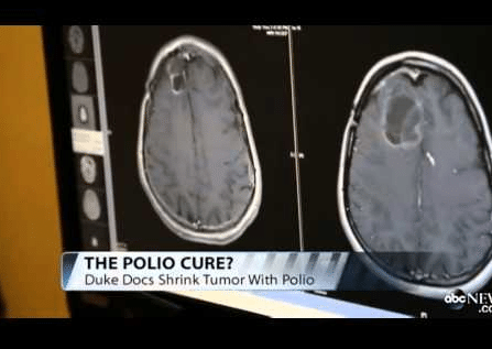 POLIO VACCINE CURE FOR CANCER